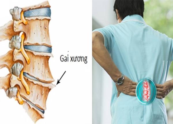 Đau lưng vùng thắt lưng có thể bạn đang bị gai cột sống lưng