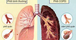 Bệnh lao Phổi cần được phát hiện sớm để điều trị hiệu quả nhất