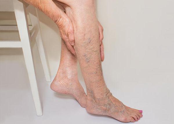 Bệnh xơ vữa động mạch 2 chi dưới khiến người bệnh đi lại khó khăn