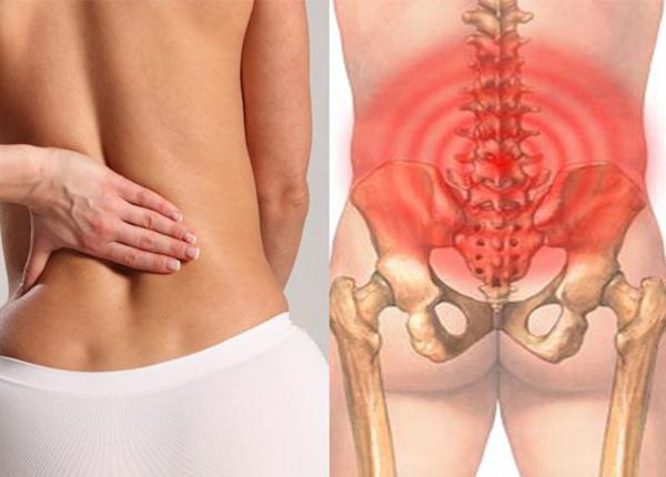 Bị đau lưng dưới là biểu hiện của một số bệnh nguy hiểm