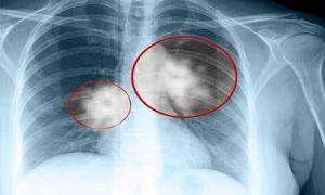 Chụp X quang lồng ngực chuẩn đoán ung thư vòm họng