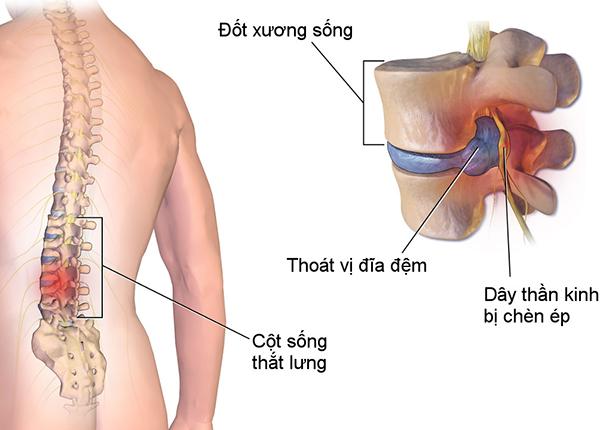 Chụp cộng hưởng từ MRI cột sống, thắt lưng