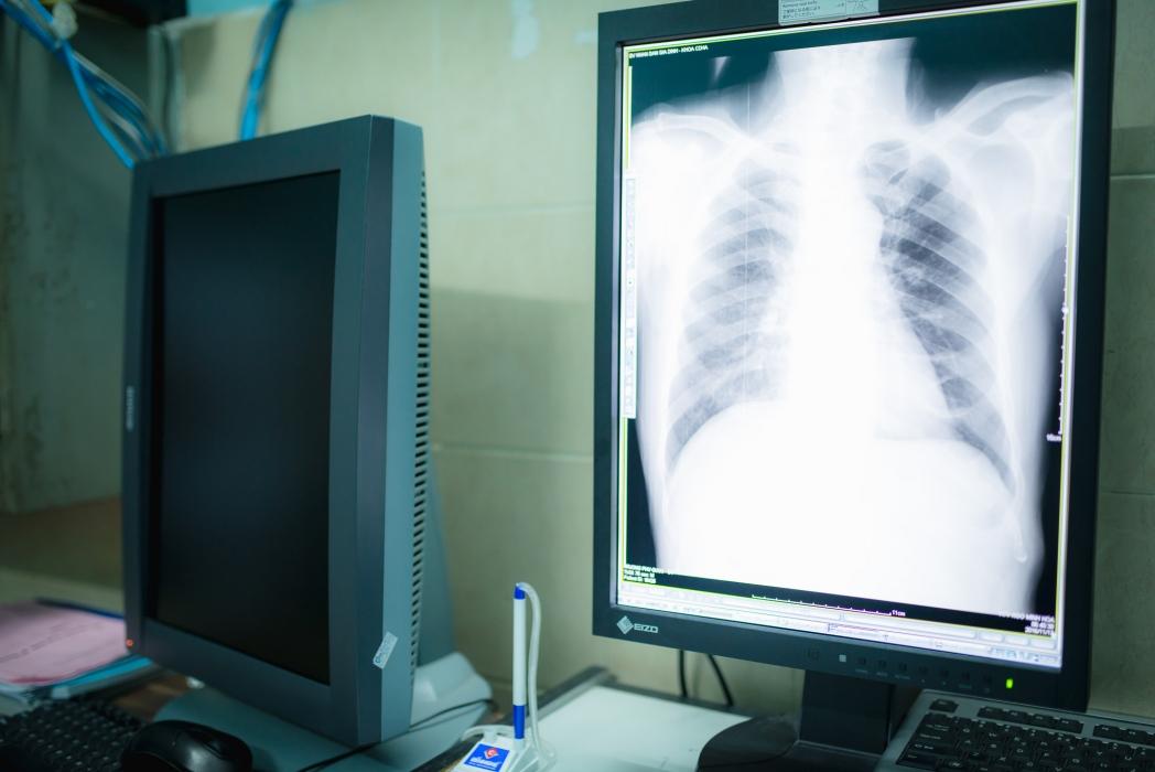 Chụp X - Quang chiếu chụp lồng ngực