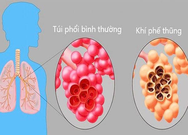 Khí phế thũng là bệnh tắc nghẽn mãn tính liên quan đến phổi