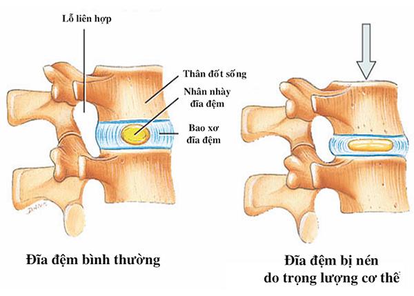 Sự thay đổi bất thường của đĩa đệm gây nên bệnh về cột sống