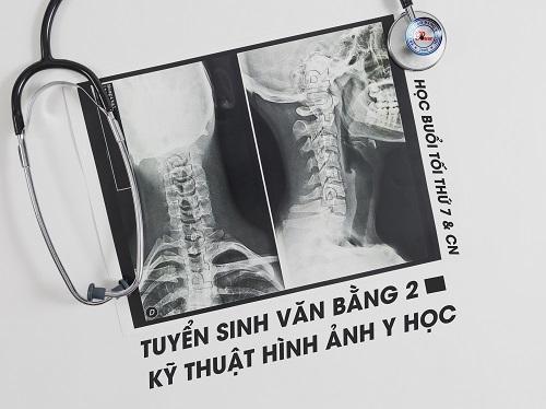 Thông báo tuyển sinh TRung cấp Kỹ thuật hình ảnh Y học