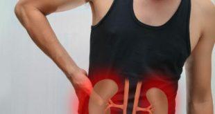 Những biến chứng nguy hiểm của bệnh sỏi thận đối với sức khỏe