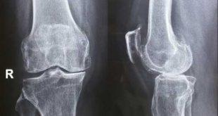 Phát hiện sớm các bệnh về xương khớp với công nghệ MRI