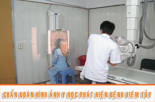 chup-xquang