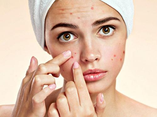 Da khô cũng cần chăm sóc cẩn thận để tránh mọc mụn