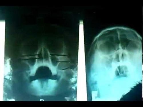 Kỹ thuật chụp Xquang Schuller của kỹ thuật viên chấn đoán hình ảnh
