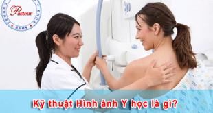 Kỹ thuật chẩn đoán hình ảnh là gì?