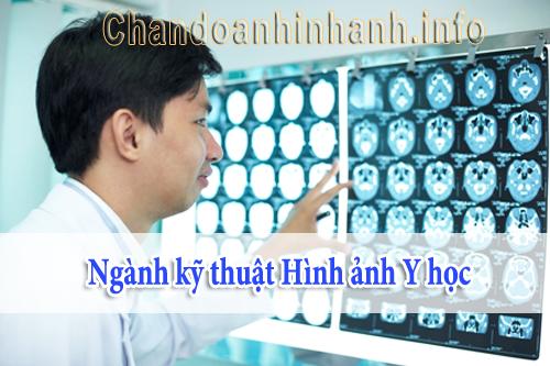 Cơ hội việc làm của sinh viên theo học kỹ thuật chẩn đoán hình ảnh
