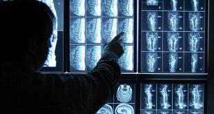 Ứng dụng của phương pháp chụp MRI đối với bệnh thoát vị đĩa đệm