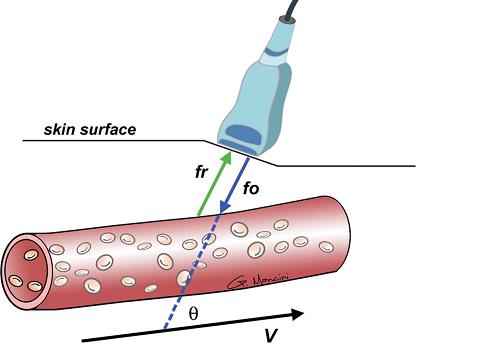 Siêu âm Doppler mạch máu là gì ?