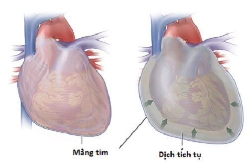 Bệnh viêm màng ngoài tim co thắt