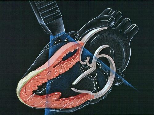 Các bước sóng âm sẽ ghi nhận thành hình ảnh hoạt động của tim