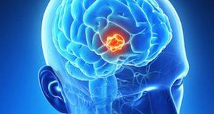 Kỹ thuật chẩn đoán hình ảnh giúp phát hiện ung thư não