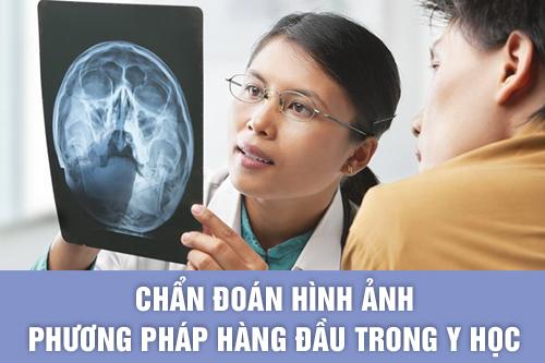 Chẩn đoán hình ảnh là phuong pháp hàng đầu trong Y học