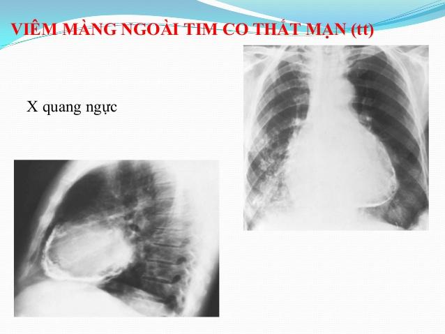 Chụp X-quang phát hiện viêm màng ngoài tim co thắt