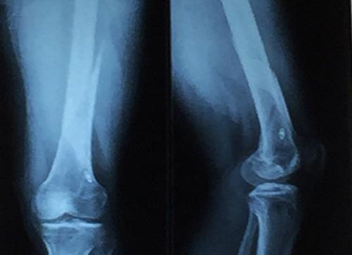 Kỹ thuật chụp X-quang đã được sử dụng nhiều trong việc đáng giá các tổn thương xương